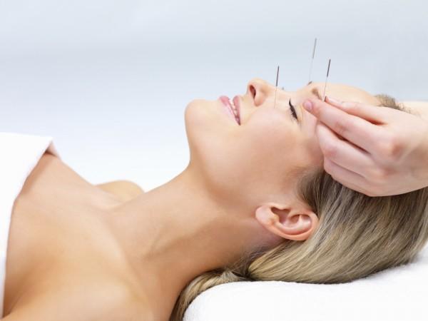 ¿Qué es la acupuntura y para qué sirve?