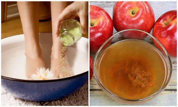 vinagre-de-sidra-de-manzana-para-los-pies