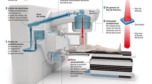 radioterapia2014-acelerador-elekta-min