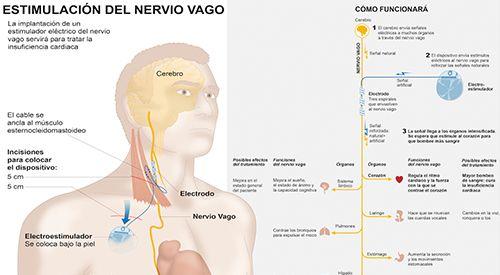 ¿Para qué sirve el nervio vago?