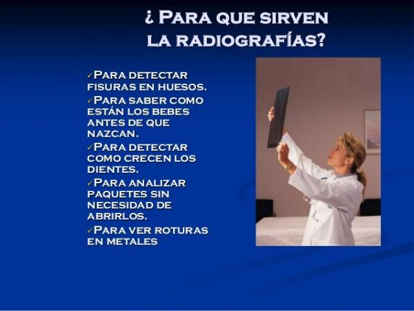 Para qué sirven las Radiografías