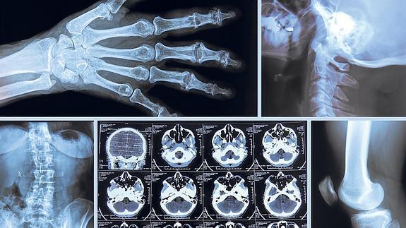 radiografia--575x323