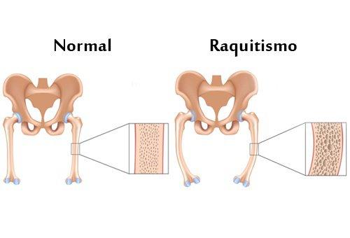 raquitismo_d-500x340